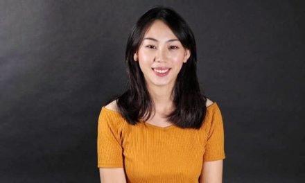 擺脫暴牙女的形象,「DSD數位微笑設計」打造無懈可擊的笑容!