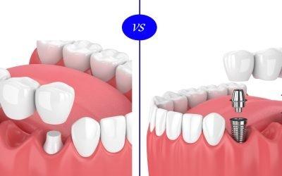 人工植牙與傳統假牙比較