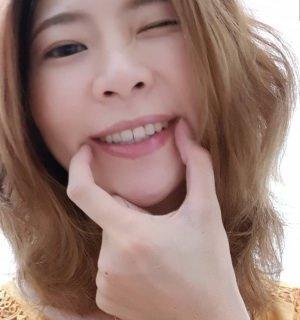 齒顎矯正見證推薦 | 牙齒矯正 | 完美比例