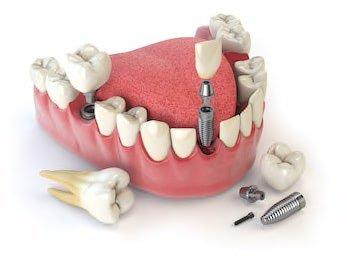 植牙前常見問題