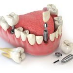 植牙前一定要注意的問題-影響植牙成功的3大因素不可不知