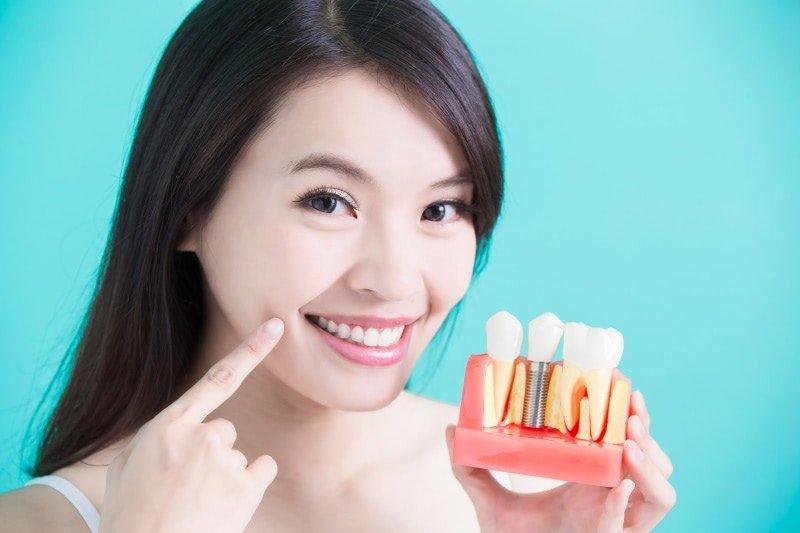 我應該要植牙嗎?還是做假牙就好?
